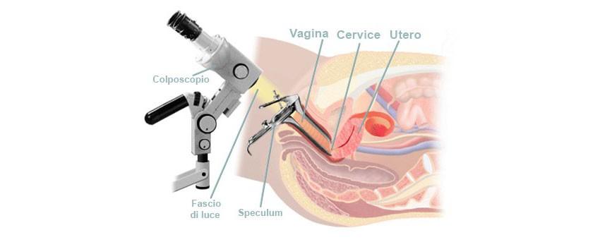 colposcopia esame ginecologico
