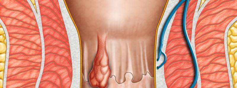 visita proctologica milano, proctologo milano, cura emorroidi