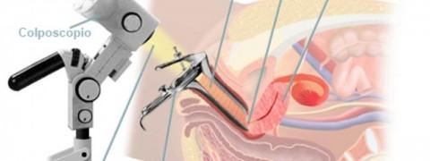 colposcopia milano, visita ginecologica milano, ginecologo milano
