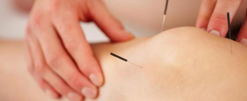 agopuntura milano, curarsi con l'agopuntura
