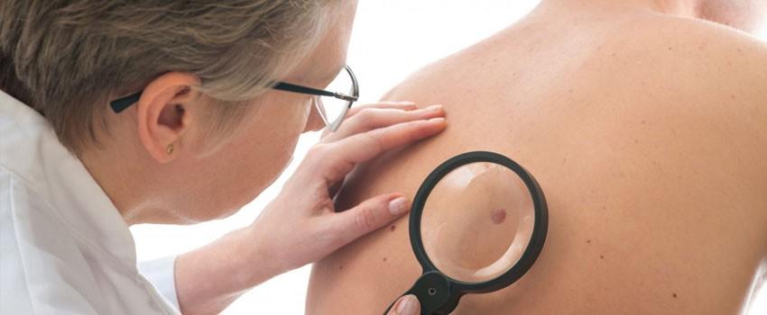 dermatologo controlla nei al centro medico buonarroti di milano