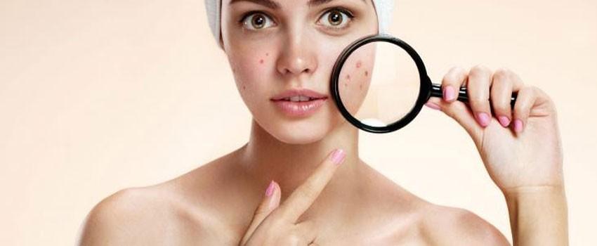 visita dermatologica milano, curare l'acne, salute della pelle del viso